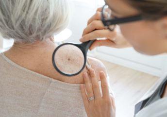 Pregledi i edukacije za rano otkrivanje melanoma